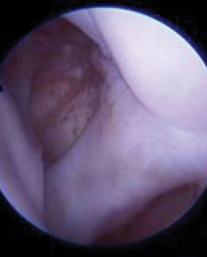 Biceps tendon of the shoulder joint