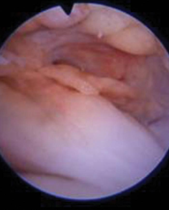 Ligamentum teres in hip joint